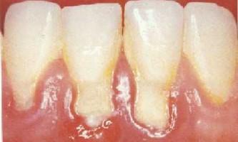 Чим небезпечний зубний наліт?