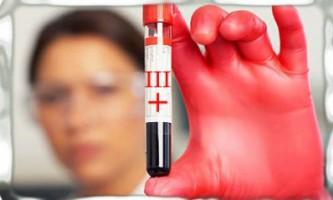 Дієта для третьої позитивної групи крові