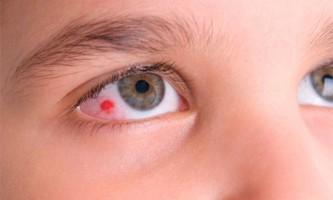 Як зміцнити кровоносні судини очного яблука?