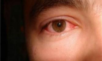 Як зменшити почервоніння очей?