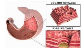 Як вилікувати ерозивний гастродуоденіт і не нашкодити собі