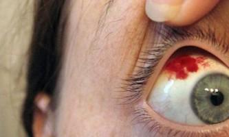 Забій очного яблука: перша допомога